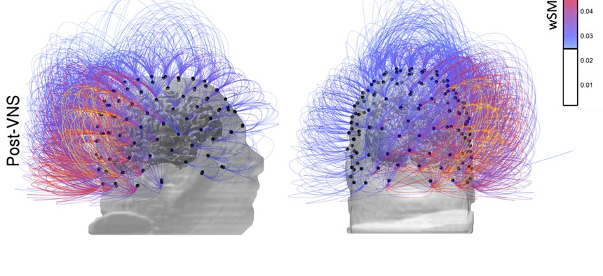 This image provided by the CNRS Marc Jeannerod Institute of Cognitive Science in Lyon, France, shows brain activity in a patient before, top row, and after vagus nerve stimulation. Warmer colors indicate an increase of connectivity.
