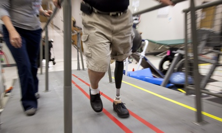 A Vietnam War veteran tries out a new prosthetic leg at the Walter Reed Army Medical Center.